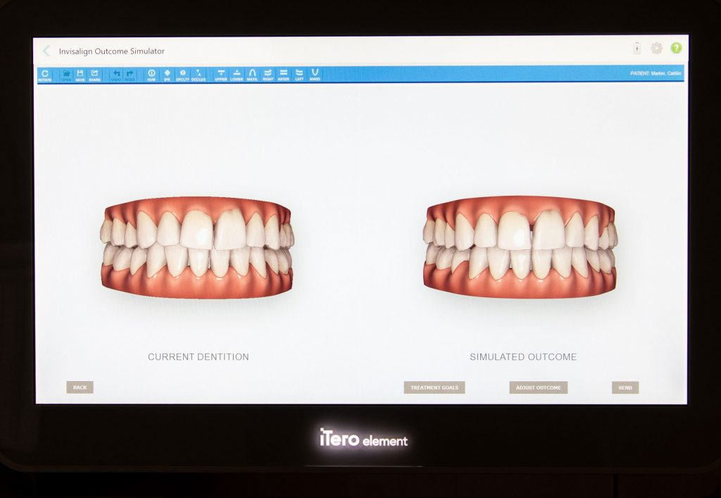 image of itero machine showing invisalign outcome simulator Tampa FL