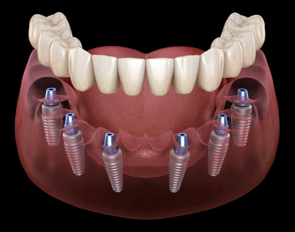 Diagram of mouth with multiple dental implants at Muscaro and Martini