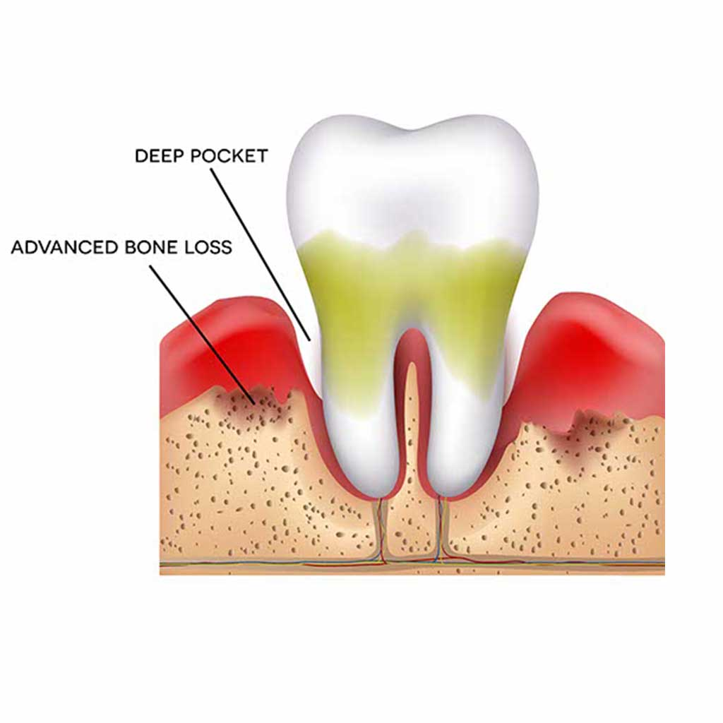 Diagram showing bone loss from advanced periodontitis